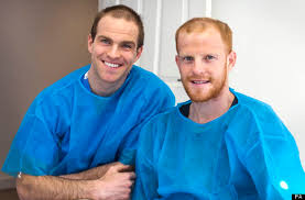 antony cottons hair transplant bald brothers make history with double hair transplant pictures