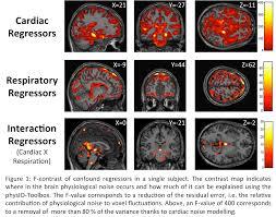 physio toolbox translational neuromodeling unit