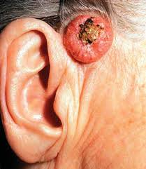 cancer of the ear cartilage nonmelanoma skin cancer