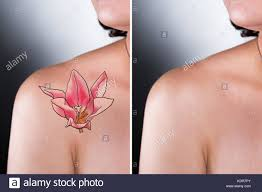 tattoo removal stock photos u0026 tattoo removal stock images alamy