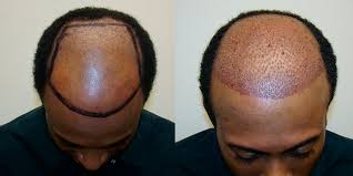 african american hair transplant hair transplant on african american male with shaved head dr