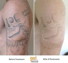25 beautiful tattoo removal prices ideas on pinterest failblog