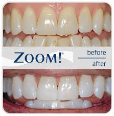 zoom teeth whitening costs u0026 reviews the dental guide