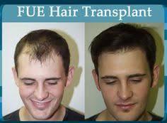 transplant hair second round draft dr tunio performing body hair fue transplant harvesting grafts