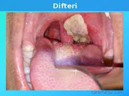 Ibu Menyusui Radang Tenggorokan Perbedaan Difteri Radang Tenggorokan Dan Amandel Tonsilitis