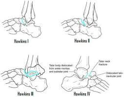 Subtalar Joint Fracture Foot Team Bone