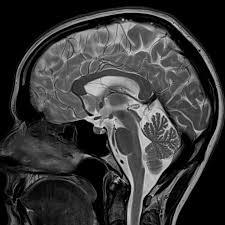 Sagittal Brain Mri Anatomy 3 Tesla Mri Magnetic Resonance Imaging U2014 North Country Neurology Pc