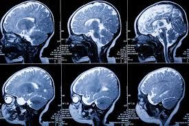 si e des motions dans le cerveau podcast science 152 dans le cerveau podcast science issn 2271 670x