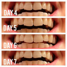 Natural Ways To Whiten Your Teeth Whitening Your Teeth Naturally With Activated Charcoal The