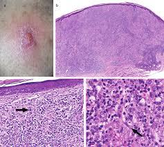 mycose b b si ge histologic features of granulomatous skin diseases