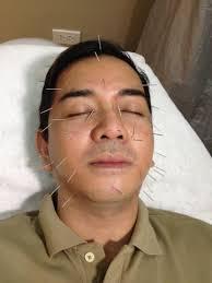 jhong hilario haircut fierce blogs my favorite belo treatments