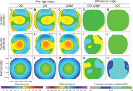 Frost Depth Map Canada by Corneal Shape Volume And Interocular Symmetry Parameters To