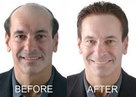 male hair extensions before and after hair extensions in pakistan buy real natural hair for men and women