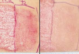 psoriasis treatment psoriasis types images treatments