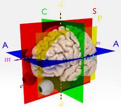 Human Anatomy Planes Of The Body Glossary Of Neuroanatomy Wikipedia