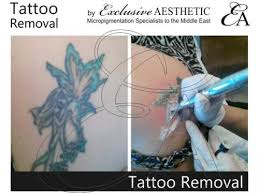 100 tattoo removal with saline redeem eyebrow tattoo scalp