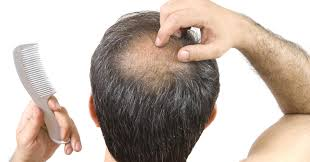 studies indicate it u0027s possible to use stem cells to cure baldness