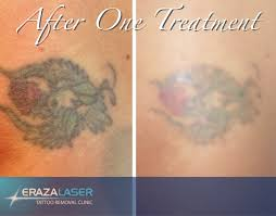 tattoo removal images erazalaser cairns