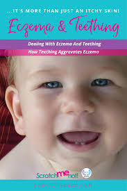 your scratching baby u2013 tips for soothing skin and stopping the