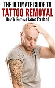 the ultimate guide to tattoo removal how to remove tattoo for