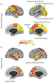 Image Of Brain Anatomy Partitioning Heritability Analysis Reveals A Shared Genetic Basis