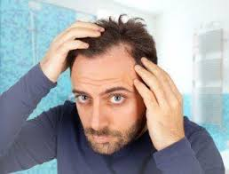 mens hair no part best hair loss treatment for men a no nonsense guide