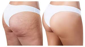 red light therapy cellulite lpg endermologie cellulite reduction technique london uk
