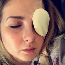novelty contact lenses ripped cornea u0027 health24