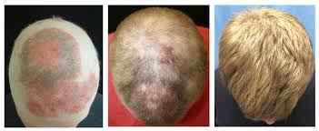 yale researcher on brink of baldness cure connecticut post