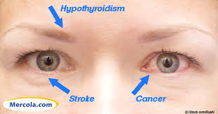 flashing lights in eye stroke iridology 14 things your eyes say about your health