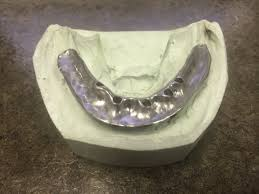 blog san antonio tx south texas dental implants u0026 prosthodontics