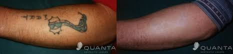 q plus a q switched laser tattoo removal quanta aesthetic lasers