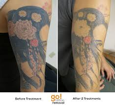 picosure laser tattoo removal laser treatments pinterest