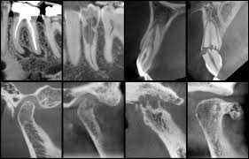 sample ucla cbct radiology reports ucla dentistry