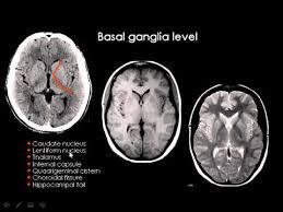 Image Of Brain Anatomy Normal Brain Anatomy Ct And Mri Youtube Youtube