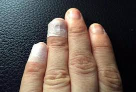 mother loses hair fingernails in hand foot and mouth disease