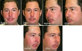 intense pulsed light review ipl 1 treatments thousand oaks ca pierre skin care