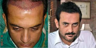 aamir khan hair transplant here are 10 pakistani celebrities who got a hair transplant and it