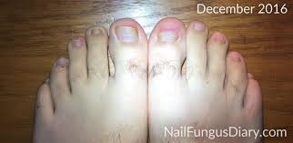 my nail fungus treatment diary nail fungus diary