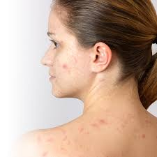 Face Mapping Acne 6 Solutions To Get Rid Of Acne Jean Coutu