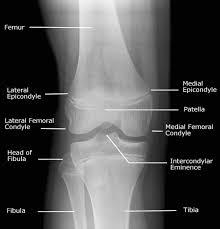 Radiology Anatomy Radiology Anatomy Images December 2013