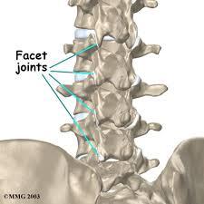 lumbar facet joint arthritis houston methodist