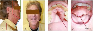 Pictures Of Oral Cancer On Roof Of Mouth by Meltdown U2013 Birth To Death U2013 And How It Affects Your Overall