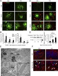 a transgenic alzheimer rat with plaques tau pathology behavioral