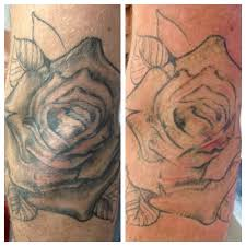 the laser we use is a revlite si the leading laser for the tattoo