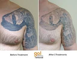 100 tattoo removal time my experience lightening and