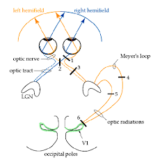 Pathway Of Light Through The Eye Basic Visual Pathway