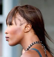 pics of women with no edges how to prevent traction alopecia glamsquad magazine