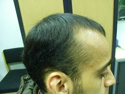 the hair centre male hair loss in a 25 year old being treated