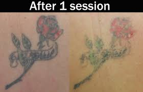 laser tattoo removal 1 session tattoo love